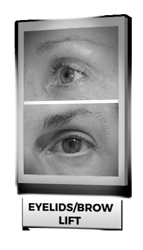 Eyelids/Brow Lift