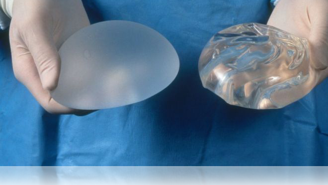 BREAST IMPLANT OUTER SHELLS